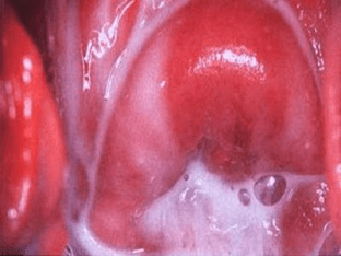 Гарднерелла: симптомы, лечение гарднереллеза