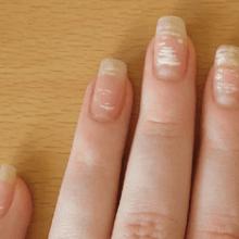 Белые пятна на ногтях — причины и приметы