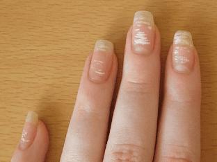 Белые пятна на ногтях - причины и приметы