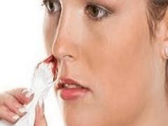 Видеть во сне кровь из носа