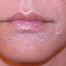 Сильно шелушится кожа лица, что делать?