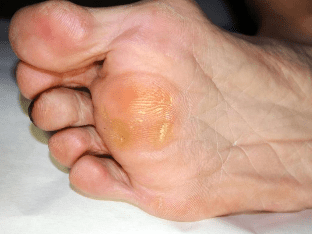 Как избавится от натоптышей на пальцах ног?