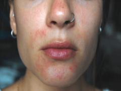 Причины развитие и способы лечения псориаза на лице